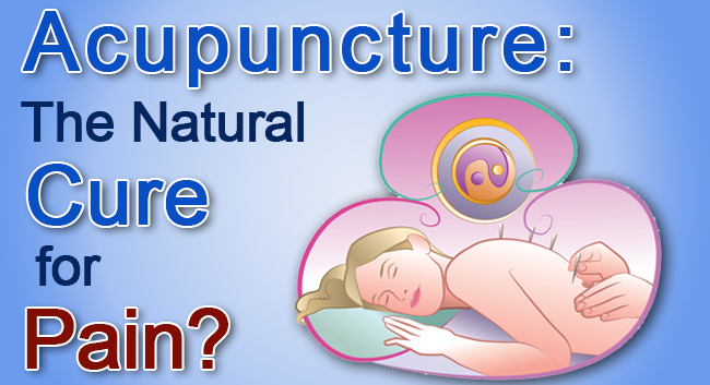 acupuncture-for-pain1