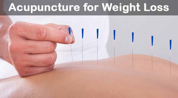 Acupuncture-for-Weight-Loss
