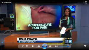 NC outreach Acupunture for pain news story preview