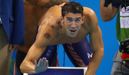 michael-phelps-cupping-large