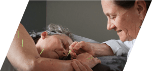 Acupuncture on arm image
